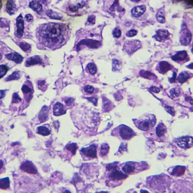Osteosarcoma cells shown under a microscope