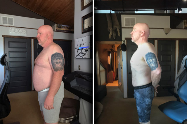 Endoscopic Sleeve Gastroplasty For Weight Loss Todd S Story