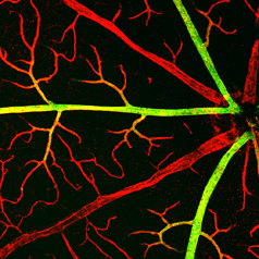 blood vessels in retina
