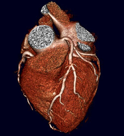 Color-image reconstruction of heart
