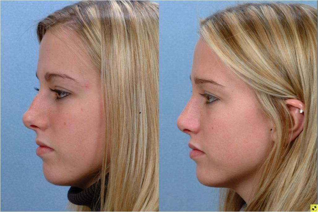 Image result for rhinoplasty