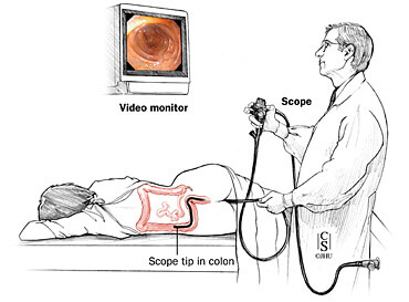 Patient positioning and room set-up for sigmoidoscopy and colonoscopy