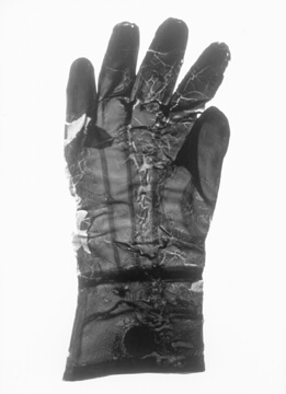 one of the first surgical gloves