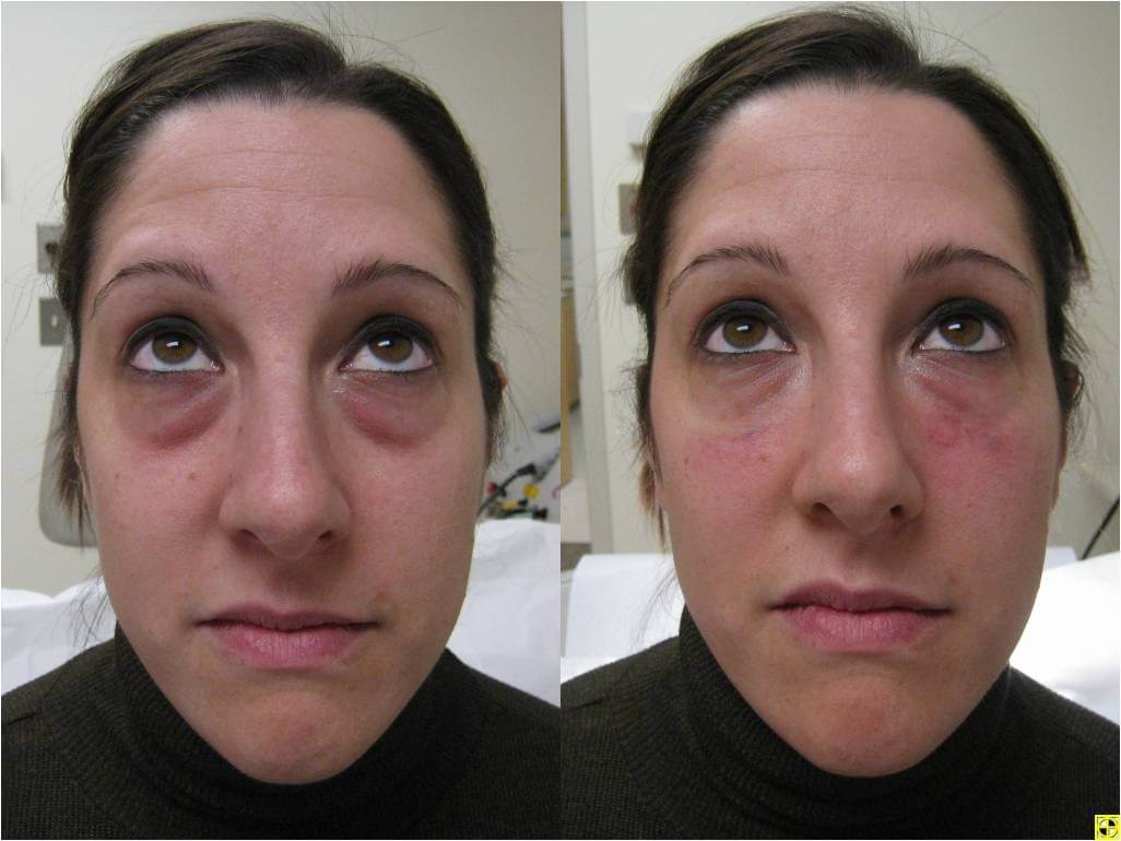 Dr. Patrick Byrne Patient - Volume to lower lid, tear through region with Restylane injections