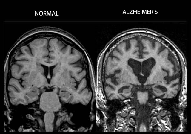 We Need to Talk About Alzheimer's Disease
