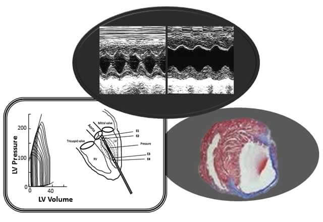 heart function and geometry by ultrasound and doppler imaging