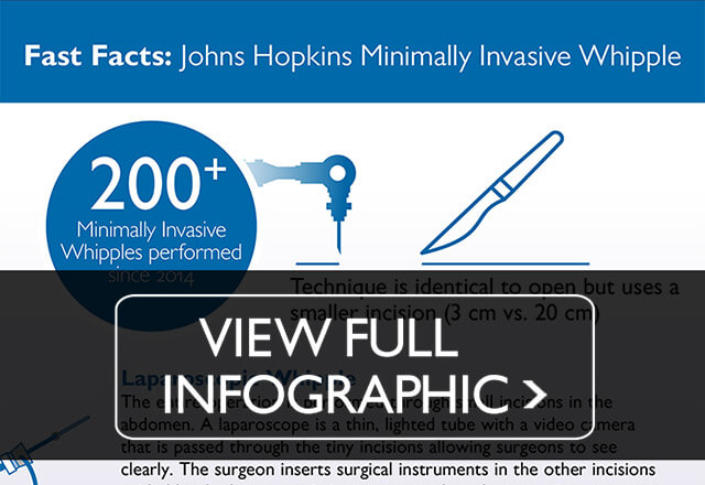 Snippet of the minimally-invasive whipple procedure infographic. Click to view full infographic.