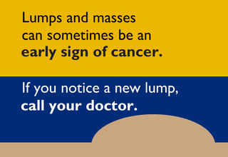Lumps and masses can sometimes be an early sign of cancer. If you notice a new lump, call your doctor.