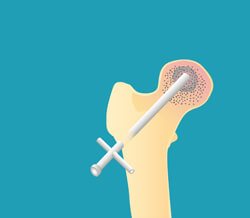 A core decompression can delay a hip implant.