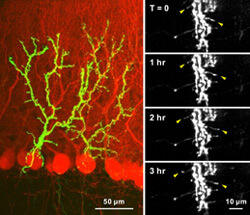 Time-lapse images reveal motile axons in the adult brain.
