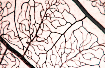 normal blood vessel vasculature