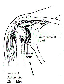 illustration showing worn humeral head and bone spur. Described under the heading When is a shoulder replacement recommended?