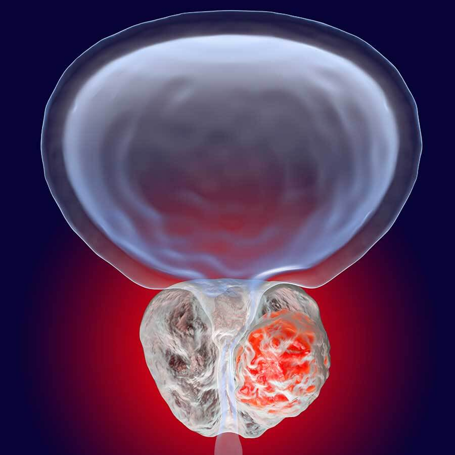Prostate tumor growing against the prostate gland