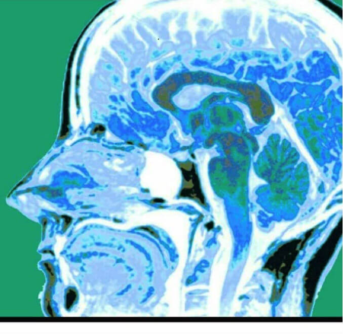 MRI scan showing medulloblastoma