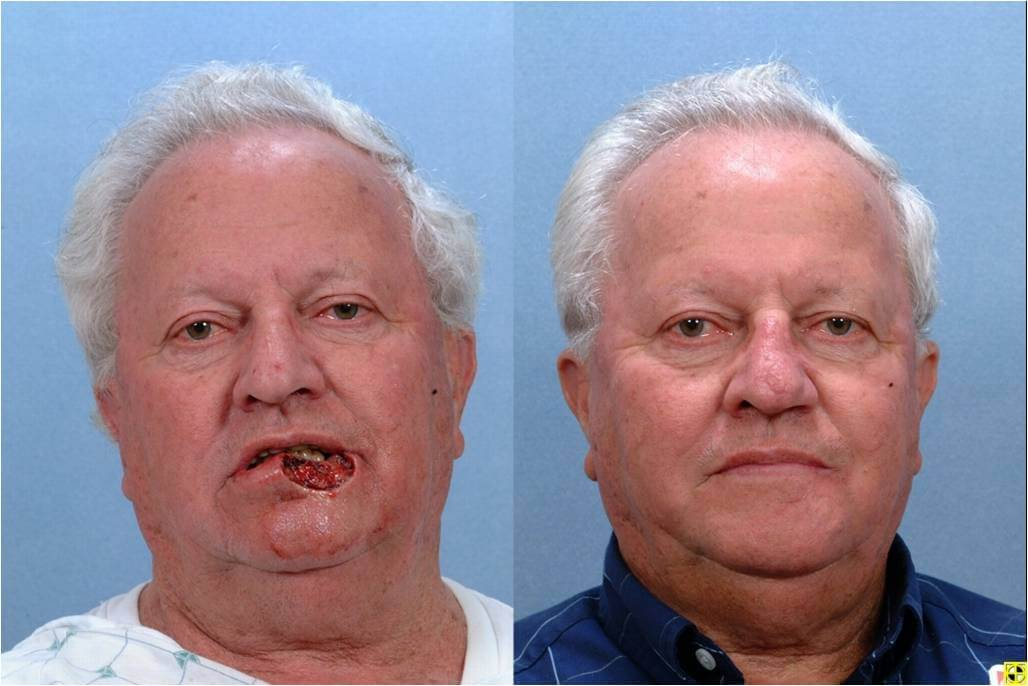 Dr. Patrick Byrne Patient - Treatment: Lower lip defect repaired with bilateral advancement flaps.