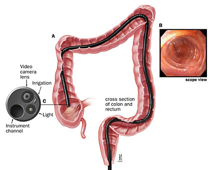 A: Position of the colonoscope in the colon; B: endoscopic view; C: detail of the colonoscope tip
