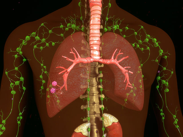 Diagram of the body's lymphatic system