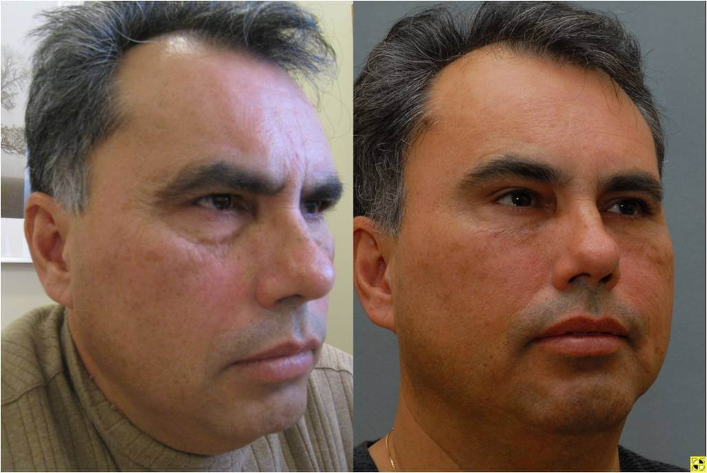 Dr. Patrick Byrne Patient - Diagnosis: incomplete right facial paralysis. Treatment: endoscopic browlift, lower eyelid blepharoplasty, and autologous fat injections to malar (cheek) region.