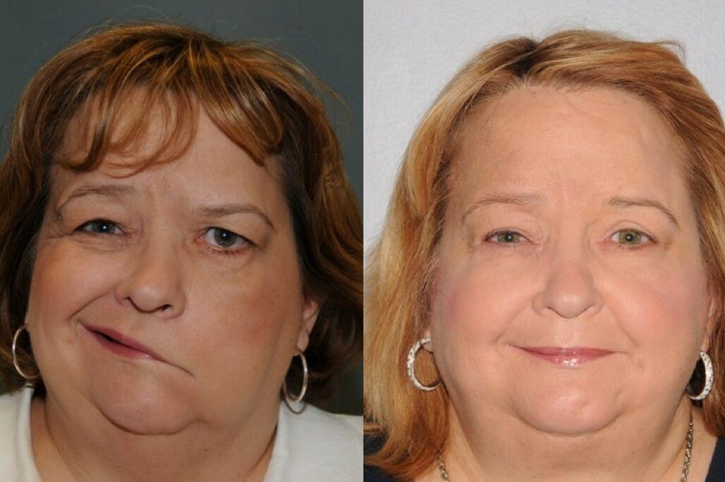 facial reconstructive deformation plastic surgeon