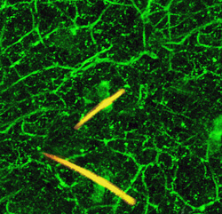pain-sensing nerve cells