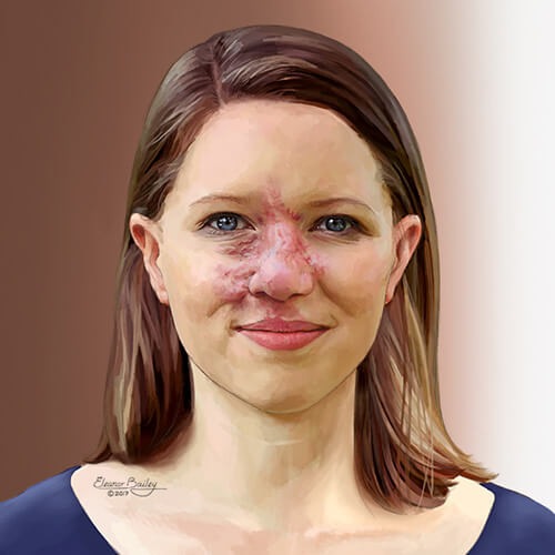 Woman with an arteriovenous malformation
