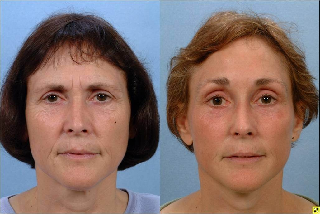 Dr. Patrick Byrne Patient- Treatment: facelift, endoscopic browlift and chemical peel to lower lid region.