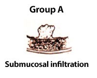 Submucosal Infiltration