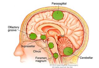 Medical illustration of different meningioma tumor locations