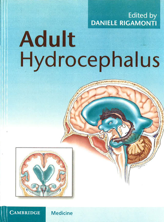 Adult Hydrocephalus cover