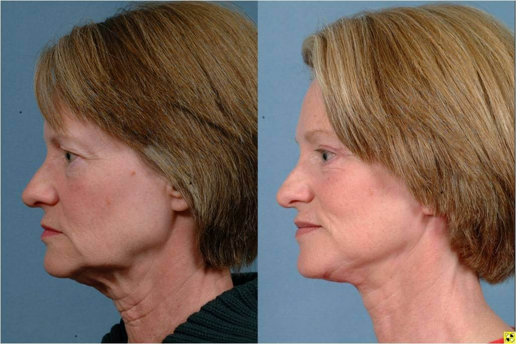 Neck lift johns hopkins facial plastic surgery in baltimore md dr patrick byrne patient treatment facelift neck liposuction upper and lower ccuart Images