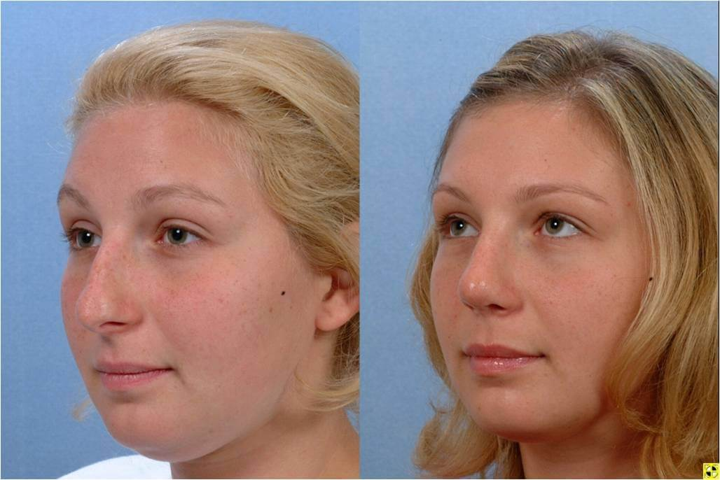 Dr. Patrick Byrne Patient - Treatment: rhinoplasty with dorsal hump reduction and nasal tip refinement.