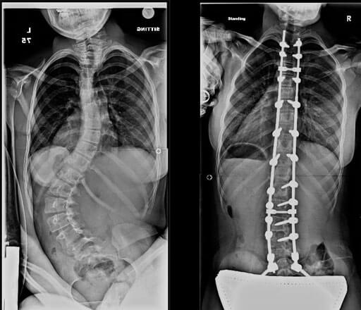 X-rays showing severe scoliosis in a patient with cerebral palsy before and after treatment