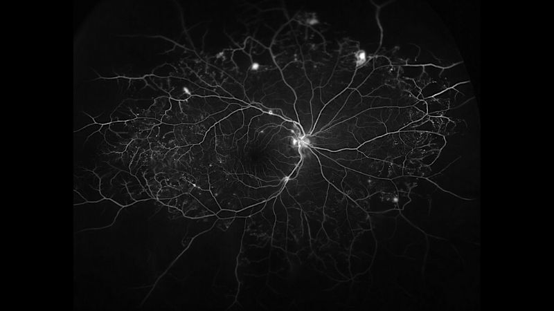 Blood vessels that feed the retina