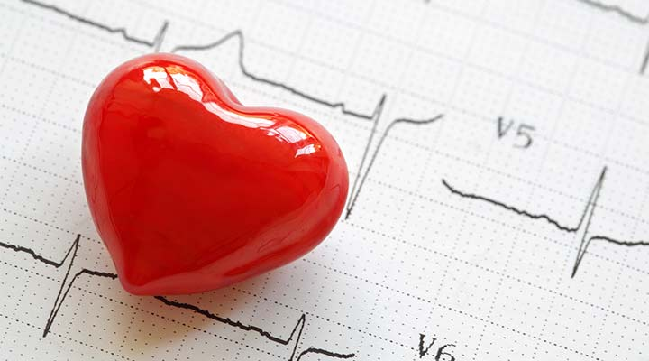 5 Things You Should Know about Atrial Fibrillation (AFib)