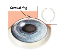 Picture of corneal rings