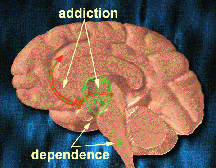Brain Addiction