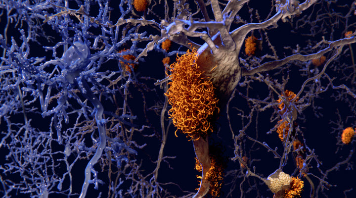 Alzheimer's: Studying a New Protein Inspires Hope