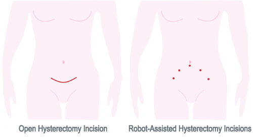 Total Abdominal Hysterectomy Incision