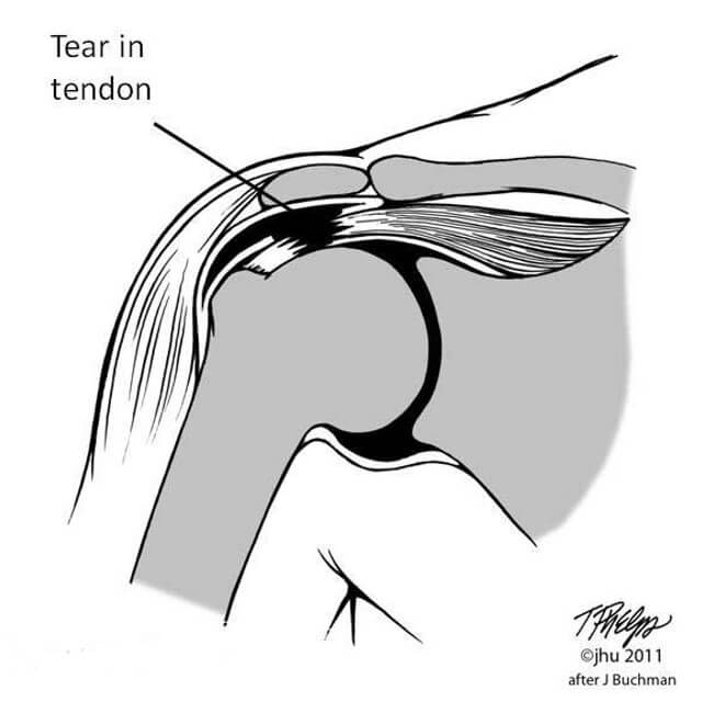 illustration of a rotator cuff tear