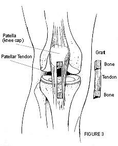 Diagram of a patellar tendon graft