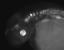 brain enhancers in zebrafish embryo
