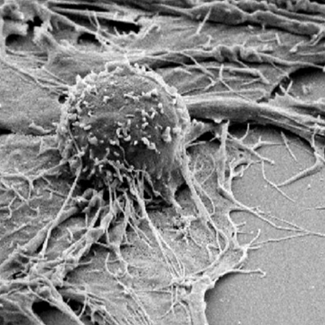 An image of a T-cell