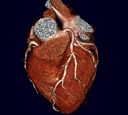 Image from a 320-CT scan of heart