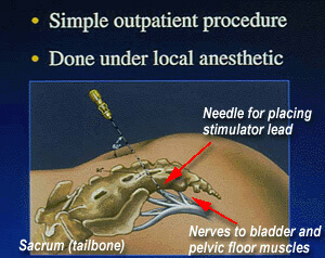 Diagram showing where the stimulator lead is placed using a needle in a simple outpatient procedure performed under local anethetic