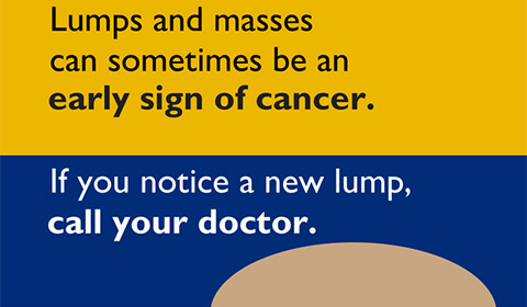 Lumps and masses can sometimes can be an early sign of cancer. If you notice a new lump, call your doctor.