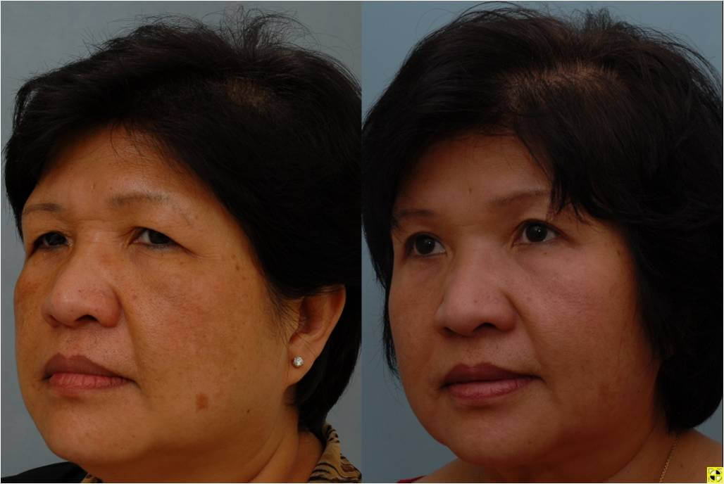Dr. Patrick Byrne Patient - Treatment: endoscopic browlift, upper eyelid blepharoplasty, and neck liposuction with skin care treatment.