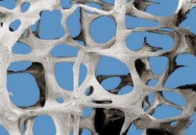 3d rendering of osteoporotic bone structure