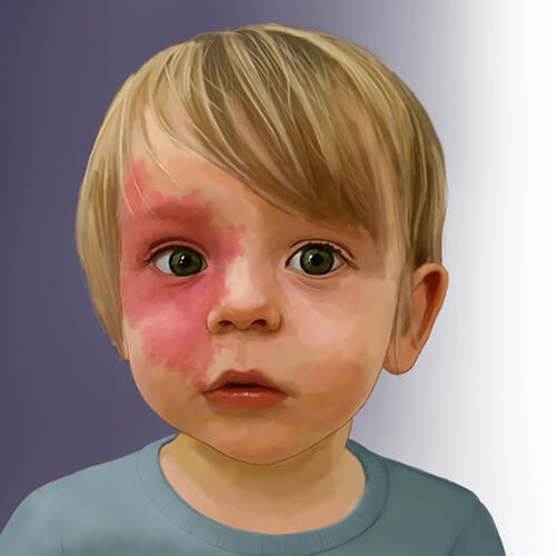 Child with a capillary malformation