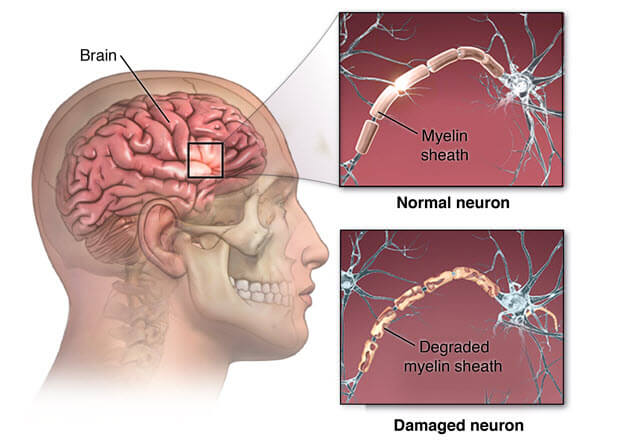 Schematic drawing of damaged nerves in MS