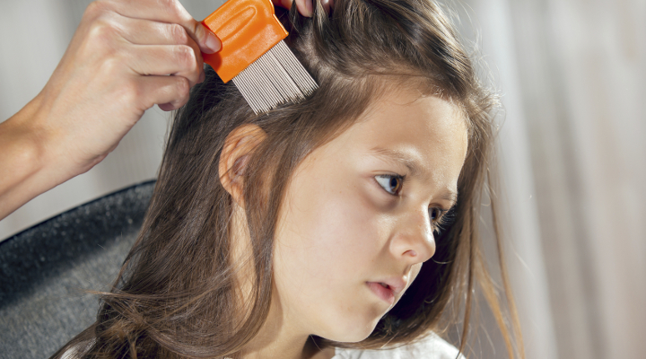 No-Panic Guide to Head Lice Treatment